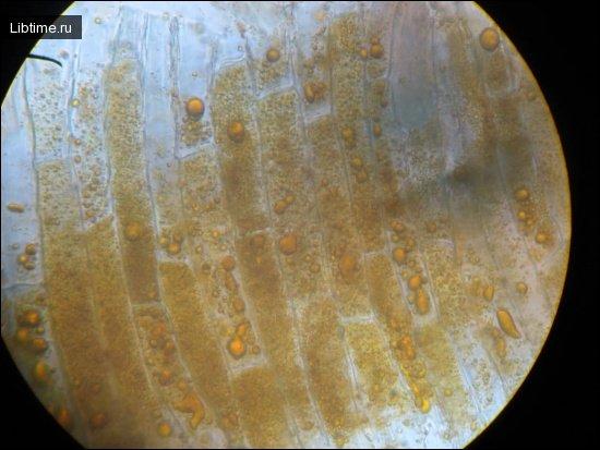 Хромопласты растительных клеток